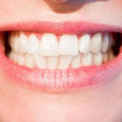Три причины посетить ортодонта